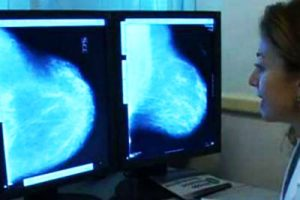 Cancro al seno, una startup per le donne