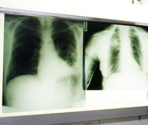 Ipertensione polmonare, ne soffrono tremila italiani